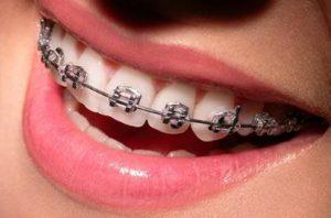 Ortodontista Vila da Penha - RJ